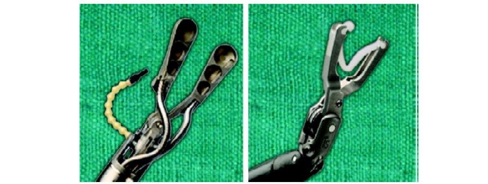 Robotic clip applicator