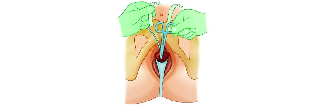Scissors or forceps should be placed between the urethra and the tape