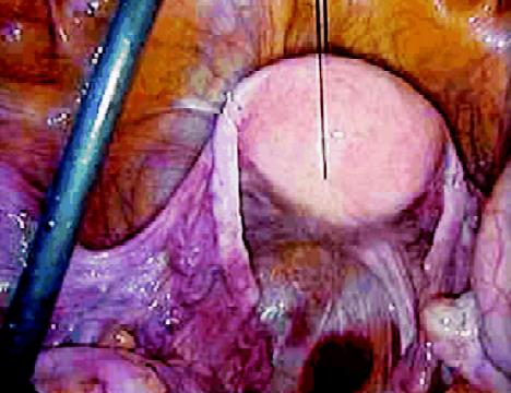 Securing the uterus by suture for proper exposure of rectum