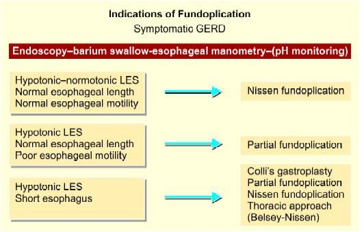 Selection of type of fundoplication