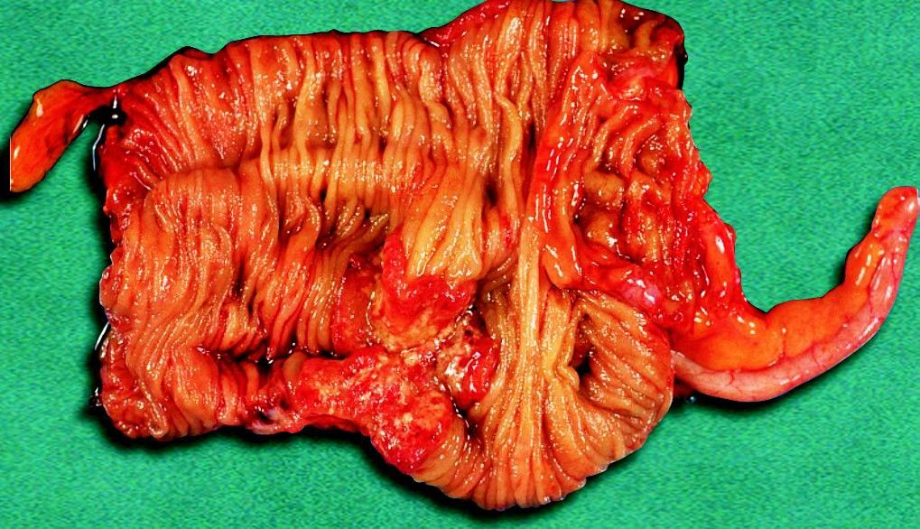 Specimen of right side of colon after right colectomy