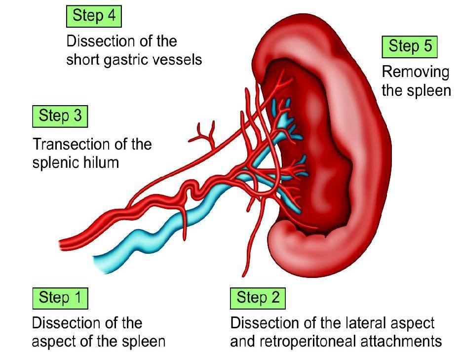 Various steps of splenectomy