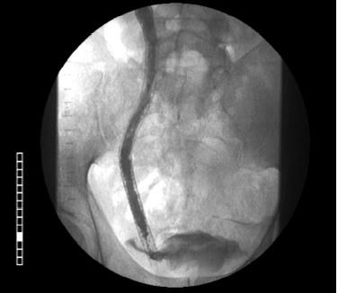 Stent in the ureter