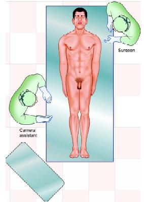 Position of surgeon in right sided hernia