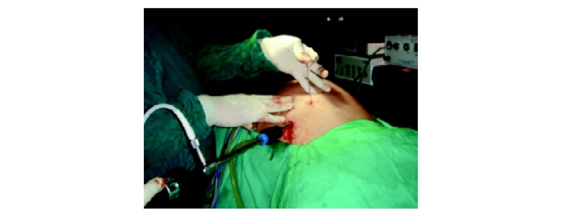 Both end of suture is tied outside the skin. Skin is lifted to slip the knot subcutaneously