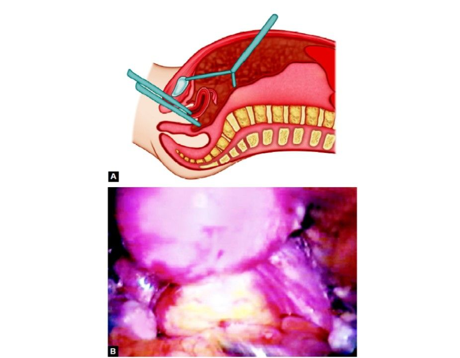 Transvaginal route of insufflation