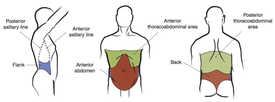 Laparoscopy in Abdominal Trauma