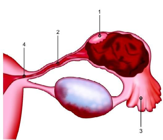 Tubal pregnancy: (1) The ampulla; (2) The isthmus (3) The infundibulum; (4) The intramural junctions