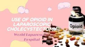 लैप्रोस्कोपिक कोलेसिस्टेक्टोमी में ओपिओइड के प्रीऑपरेटिव उपयोग का प्रभाव