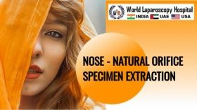 NOSE - प्राकृतिक छिद्र नमूना निष्कर्षण