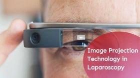 लेप्रोस्कोपी में आभासी वास्तविकता और छवि प्रक्षेपण प्रौद्योगिकी का उपयोग