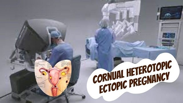 Minimally Invasive Surgical Management of a Cornual Heterotopic Ectopic Pregnancy