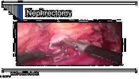 Laparoscopic Nephrectomy Performed As Day Care Surgery