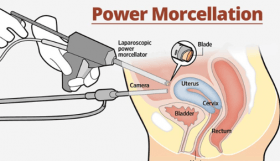Power Morcellator Patient Advocate Dies