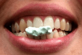 Gum-Chewing After Laparoscopic Surgery fasten the recovery