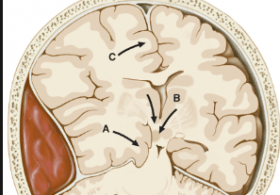 Effect of Patient Positioning on Intracranial Pressures during Laparoscopy