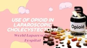 Effect of preoperative use of opioid in laparoscopic cholecystectomy