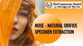 NOSE - Natural Orifice Specimen Extraction