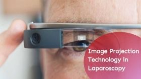 Use of Virtual Reality and Image Projection Technology in Laparoscopy