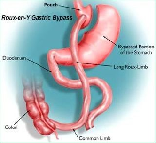 Weight Loss Surgery Cures Type 2 Diabetes for Most  of the Patient