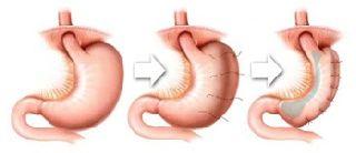 Investigational Laparoscopic Weight Loss Surgery