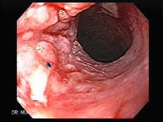 Cholecystectomy as a risk factor for oesophageal adenocarcinoma