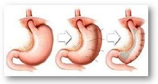 Laparoscopic Gastric Plication Operation for Patients With Severe or Morbid Obesity